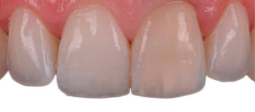 Antes - blanqueamiento dental interno