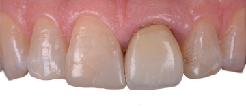 before - ceramic veneers case