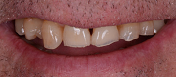 before - dental wear case