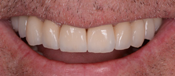 after - dental wear case