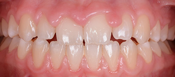 gum inflammation case - before
