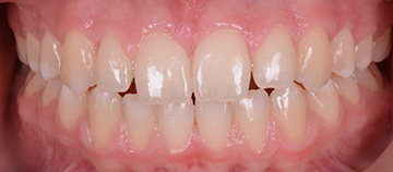 gum inflammation case - after
