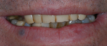 before - Fixed teeth with little bone