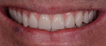 after - Fixed teeth with little bone