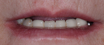 before - Fixed teeth without bone graft