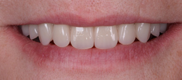 after - Fixed teeth without bone graft