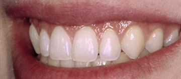 after - Gingival smile case
