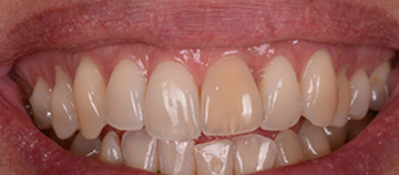 before Dark stained teeth case