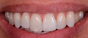 after Dark stained teeth case