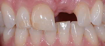 tooth loss case - before