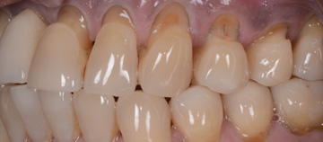 before - worn teeth case