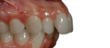 before - dental protrusion case