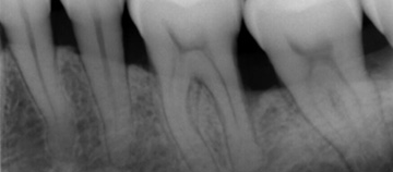 bone-reconstruction-around-teeth after