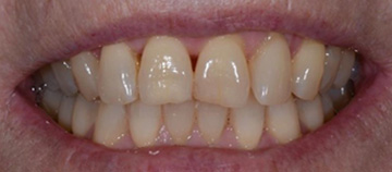 Dark or stained teeth